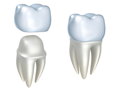 Most Large Fillings Need a Crown to Cover the Tooth