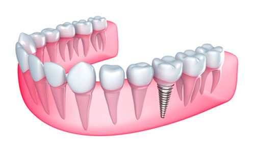 Do Dental Implants Give Your Face a Younger Look?